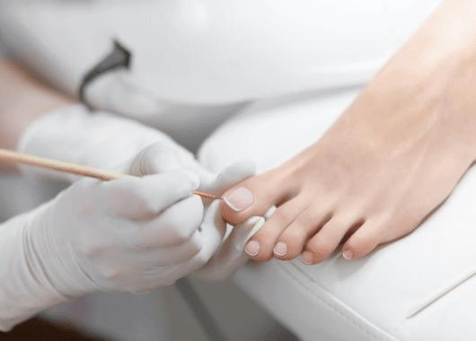 ביצוע טיפול פדיקור למטופלת