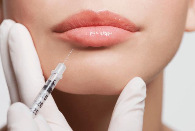 הזרקת בוטוקס בשפתיים
