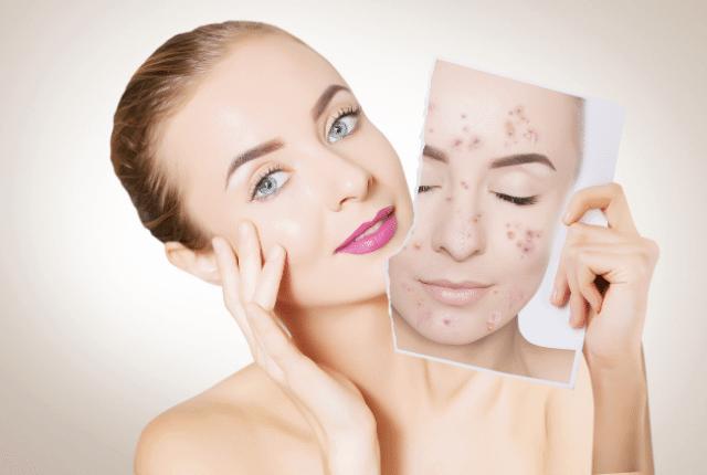 אישה עם פנים חלקות מחזיקה תמונה של פנים עם פצעים