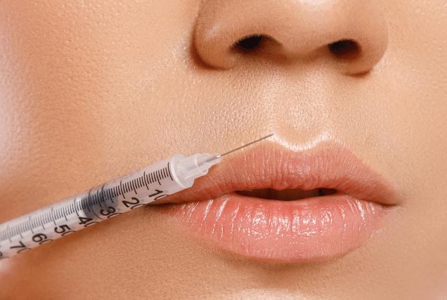 הזרקת חומר למילוי שפתיים
