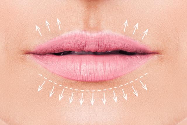 תכנון מילוי שפתיים