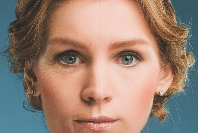 לפני ואחרי - בוטוקס